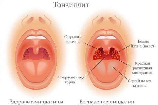 заболевание Тонзиллите