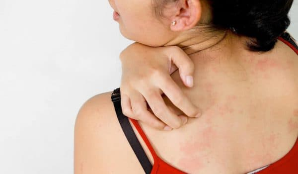 при появлении признаков аллергии, стоит обратиться к врачу и сдать необходимые анализы